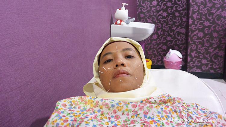 Pengalaman akupunktur kesehatan dan kecantikan di Bandung